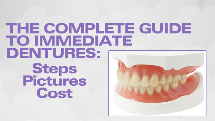 Immediate Dentures: Procedure Steps, Cost, Pictures