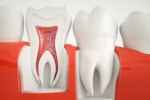 Failed Root Canal Treatment: Symptoms and Causes